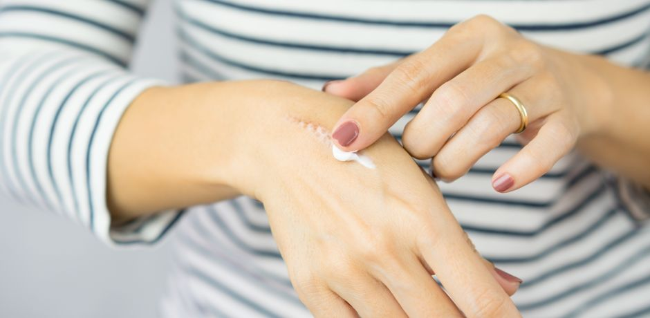 The 5 best creams to remove scars from your skin