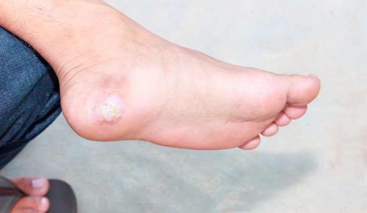 The best products to remove warts on your skin